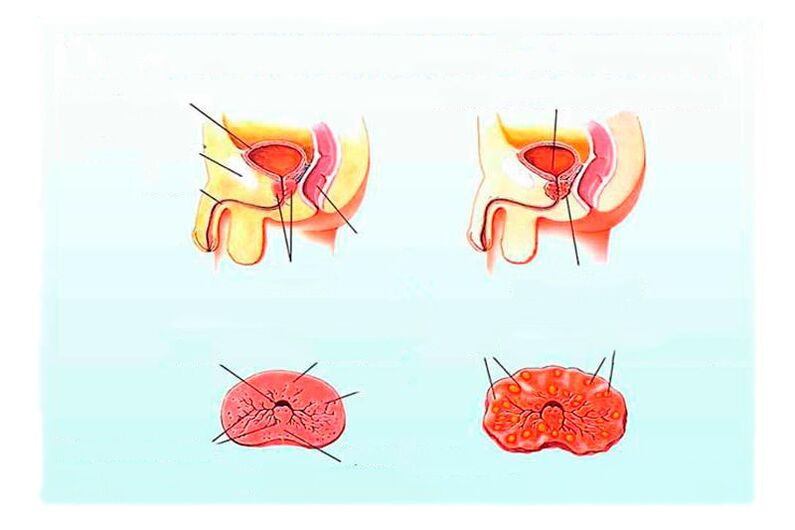 Colliculitis és prostatitis